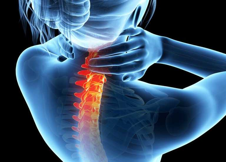 ¿Qué pasa si se presenta dolor lumbar y ciática?